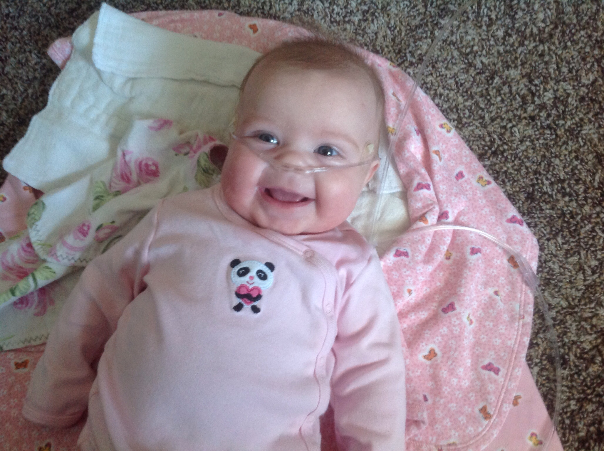 Update on Breanna – video monitors are awesome!